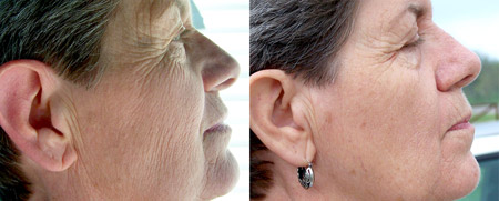 Before & After Spraying i-H2O - Anti-aging